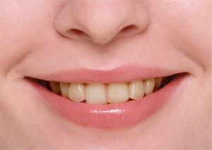 img003  歯 300